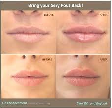 Sydney CBD Beauty lip-enhancement