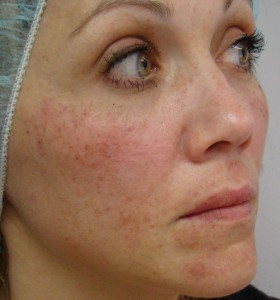 IPL_Limelight_Pigment_Removal_Before