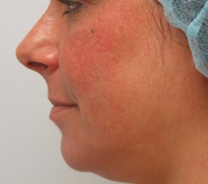 Laser_vein_removal_after
