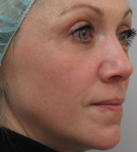 IPL_Limelight_Pigment_Removal_After