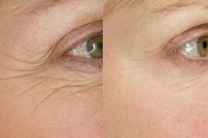 The Beauty clinic - ThermiSmooth - before and after