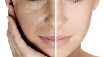 Sydney-Beauty-Chemical-Peels