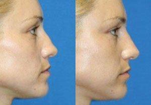 Sydney CBD Nose-reshaping