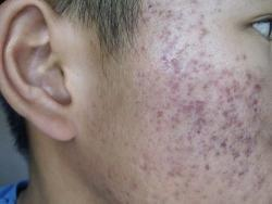 CBD Beauty acne-pigmentation