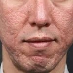 The Beauty Clinic acne-scarring