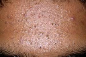 CBD Cosmetics comedonal-acne