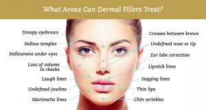 dermal-filler-Sydney-CBD-Beauty-Cosmetic