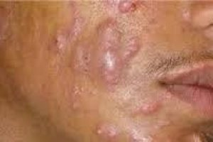 Cosmetics Sydney CBD nodular-acne