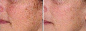 laser skin resurfacing - Sydney
