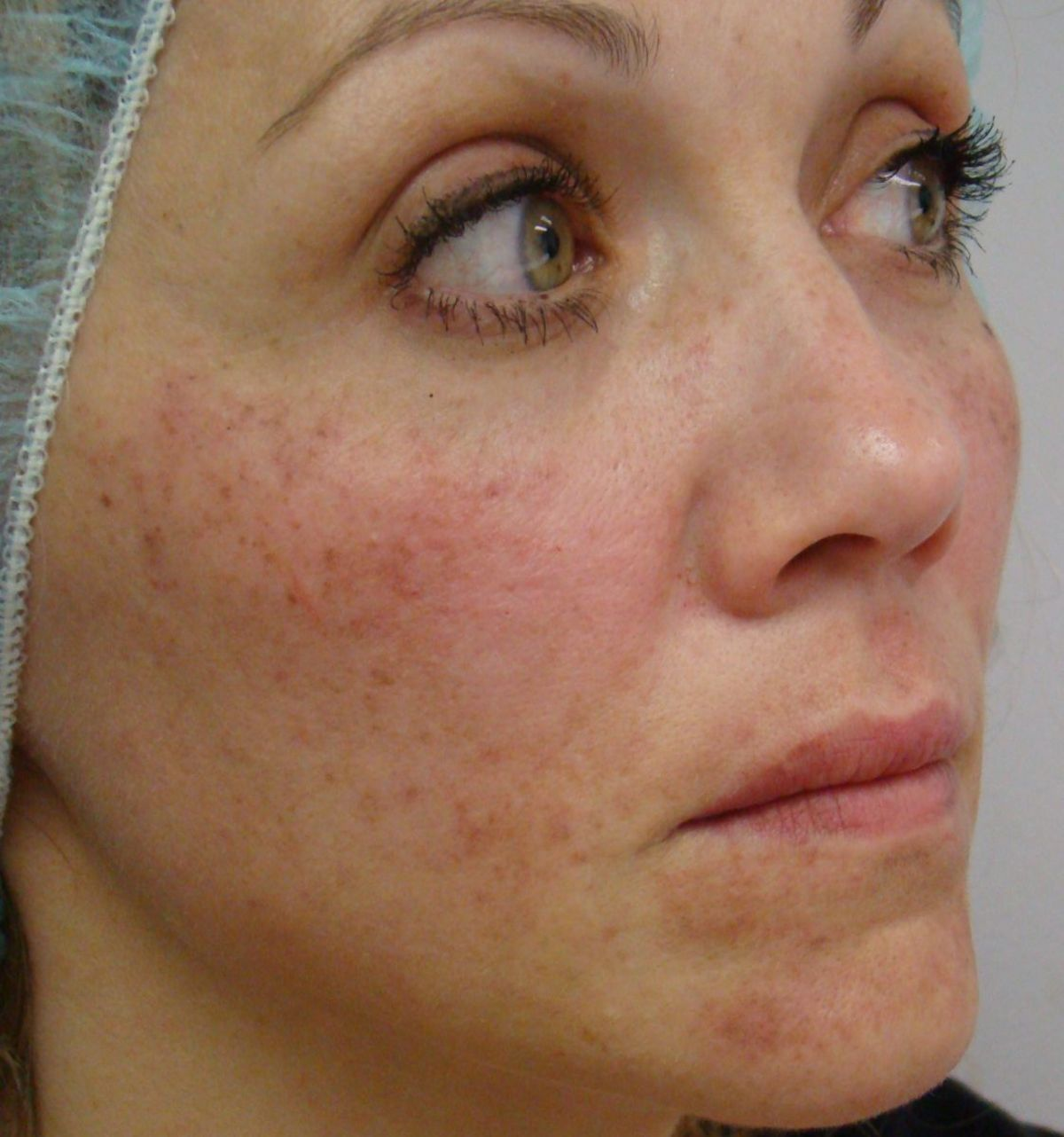 Ipl Pigment Removal The Cosmetic And Beauty Clinic 70