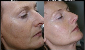 pigmentation removal with IPL
