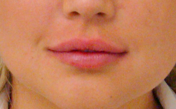 Lip Correction The Beauty Clinic 70 Pitt St Sydney