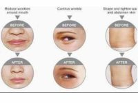 mesotherapy_solution