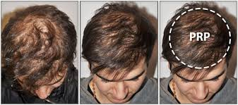 PRP-Hair-Restoration