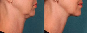 Chin-fat-before-and-after