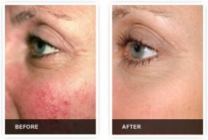 Sydney Beauty and cosmetic clinic cutera Genesis