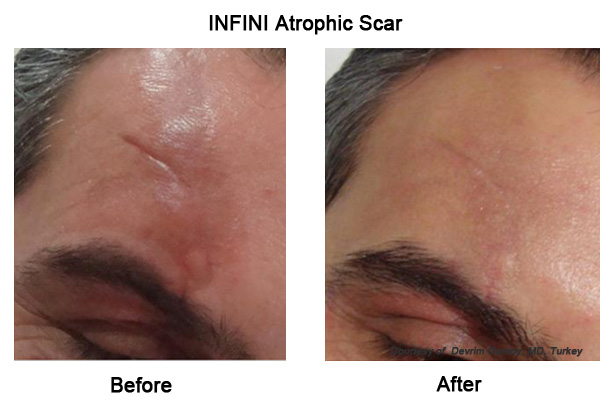 Infini RF Revolutionary treatment effective for all skin