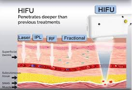 Infini-RF-And-Hifu-combination-sydney-beauty