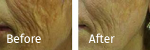Infini-RF-Skin-Tightening-Sydney-Beauty