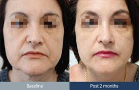 Thebeautyclinic-ultraforma-sydney-cbd-city-before-and-after-1