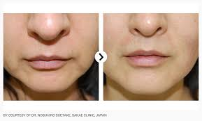 Thebeautyclinic-ultraforma-sydney-cbd-city-before-and-after-2
