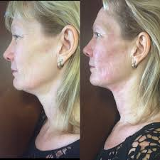 Thebeautyclinic-ultraforma-sydney-cbd-city-before-and-after-3
