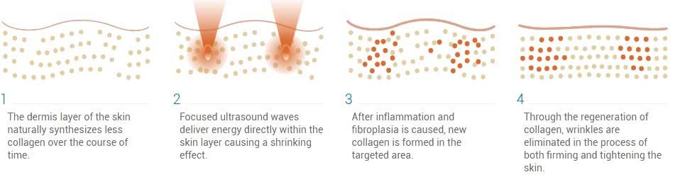 Ultrasonic-skin-tightening-.sydney-cbd
