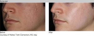 infini-RF-acne scar white-Sydney-Beauty