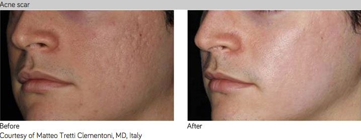 infini-RF-acne scar white-Sydney-Beauty