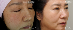 Pastelle-Sydney-beauty-Before-and-after