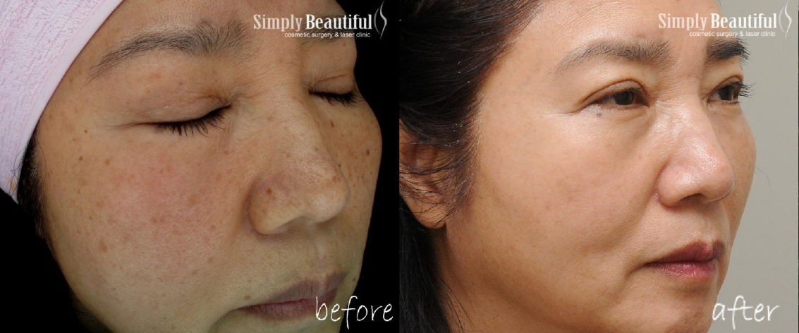 Pastelle Sydney Beauty Before And After The Cosmetic And