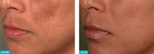 Pastelle-q-switched-Beauty-sydney-Melasma