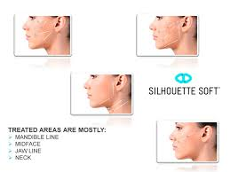 Silhouette-Threads-tighten-face-and-neck-sydney-beauty