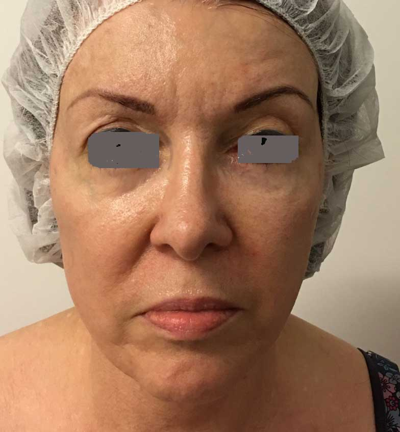 Ultraformer Skin Tightening and Smoothing Generation III
