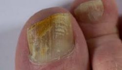 fungal-nail infections-sydney-beauty-cbd