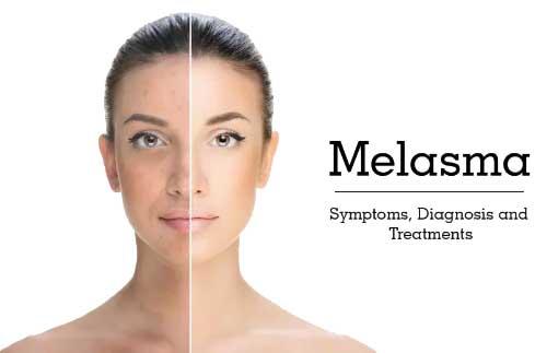 Beauty-Sydney-Melasma-Dr-Bitlan