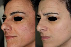 Beauty-Sydney-Melasma-Dr-Bitlan-hormones-2