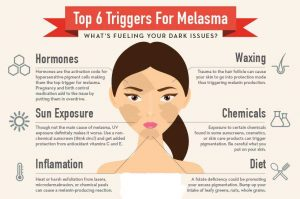 Beauty-Sydney-Melasma-Dr-Bitlan-hormones