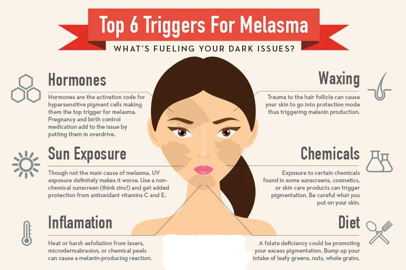 Home remedies for melasma pigmentation
