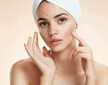 The-Beauty-and-cosmetic-clinic-sydney-cbd-Acne