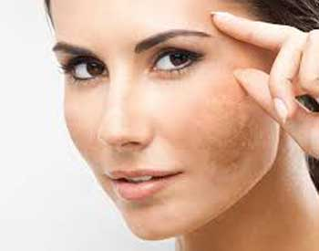 The-Beauty-and-cosmetic-clinic-sydney-cbd-Pigmentation