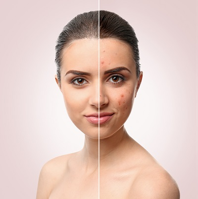 Acne-Treatmen-the-beauty-and-cosmetic-clinic-sydney