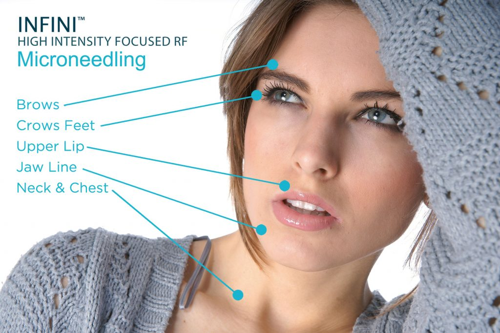 Microneedling-radio-requency-infini-Treatmen-the-beauty-and-cosmetic-clinic-sydney