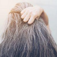 The-beauty-and-cosmetic-clinic-sydney-cbd-Hair-loss-treatment
