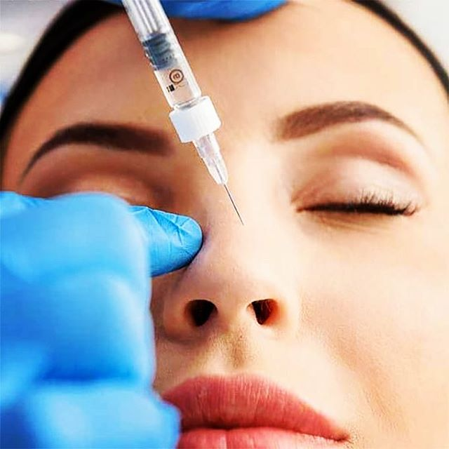 The-beauty-and-cosmetic-clinic-sydney-cbd-Liquid-Nose-Job-non-surgical