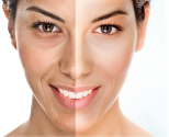 The-beauty-and-cosmetic-clinic-sydney-cbd-Super-facial