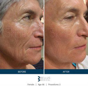 b-a-Wrinkles-Sydney-Cosmetic-Clinic-cbd