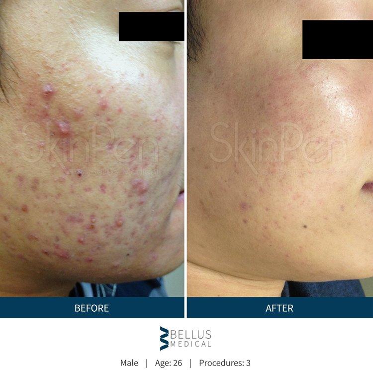 b-a-acne2-Sydney-Cosmetic-Clinic-cbd