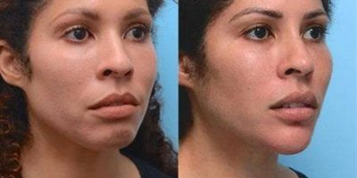 Facial-contouring-The-Beauty-and-Cosmetic-Clinic-Sydney-CBD-2