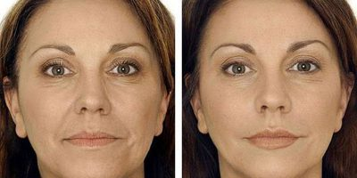 Facial-contouring-The-Beauty-and-Cosmetic-Clinic-Sydney-CBD-4